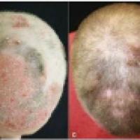 Un medicamento para la artritis pone fin a la alopecia
