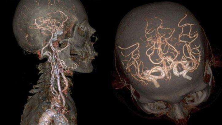 HD: el cuerpo humano por dentro, como nunca antes se vió – TOLOMEO